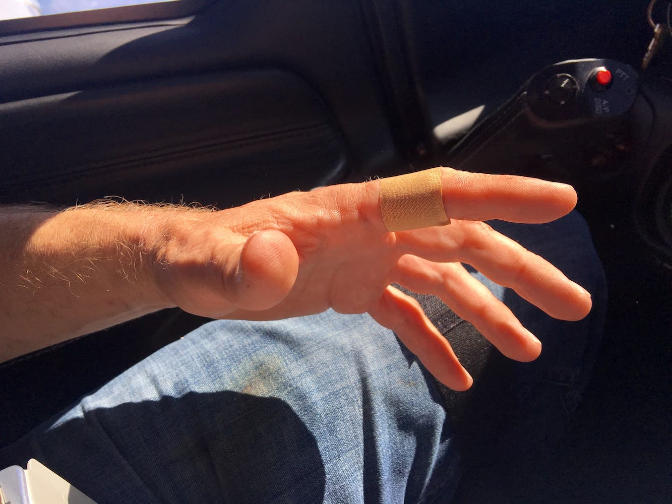 B – Bleeding at 17k feet – there is more to this story